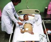 男子患病8个月未进食瘦至33公斤